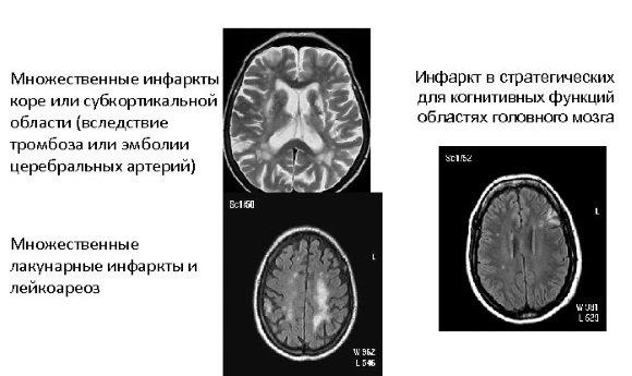 Критерии сосудистой деменции без критериев ДЭП