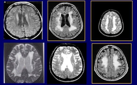 Нейровизуализация при ДЭП