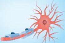 Рассеянный склероз в молодом возрасте