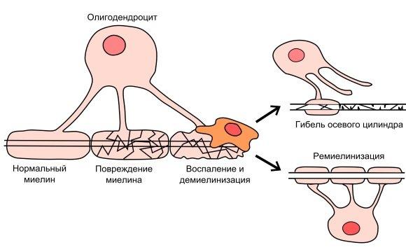 Патогенез рассеянного склероза