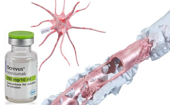 Окревус замедляет прогрессирование рассеянного склероза