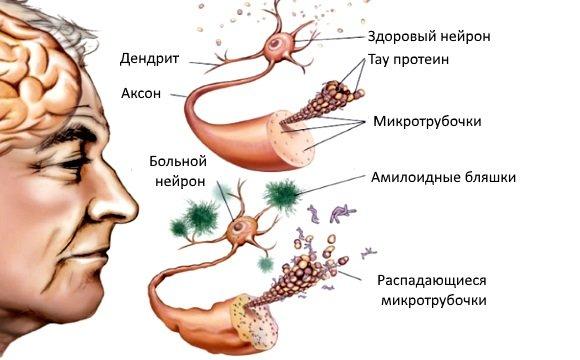 Морфологические признаки болезни Альцгеймера