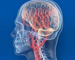 Сосудистая энцефалопатия головного мозга: виды, причины, опасность и лечение
