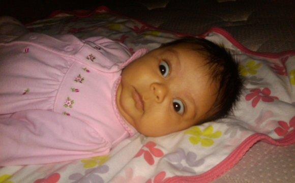 Перинатальная энцефалопатия, внутричерепная гипертензия, симптом Грефе