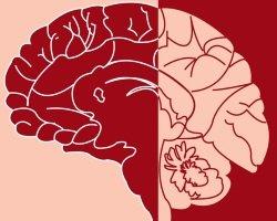 Диагноз-загадка – энцефалопатия неуточнённая