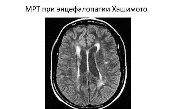 Головной мозг при энцефалопатии Хашимото