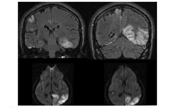 Нейровизуализация при синдроме MELAS