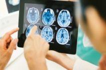 Энцефалопатия у взрослых: причины, симптомы и методы лечения