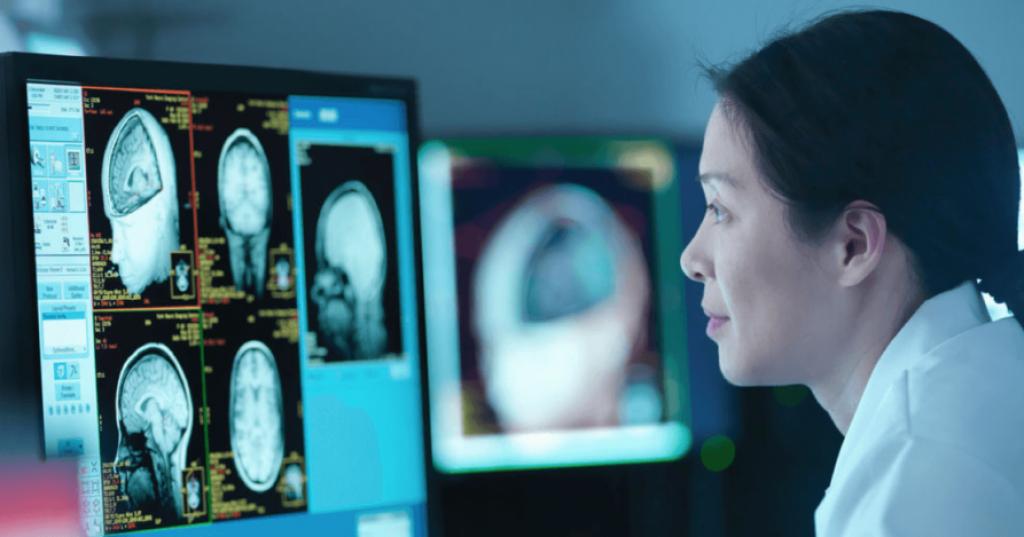 Опухоль головного мозга. Как распознать болезнь на ранней стадии?